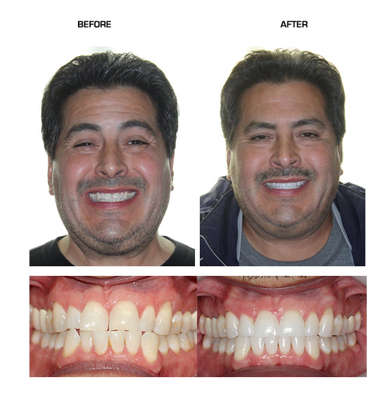 Before & After(backup) – Niepraschk Orthodontics