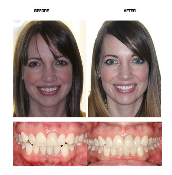 Before Amp After Niepraschk Orthodontics