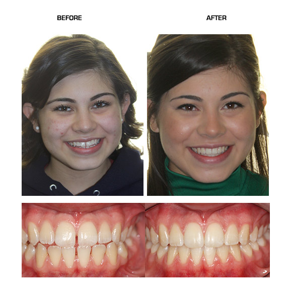 Before After Backup Niepraschk Orthodontics